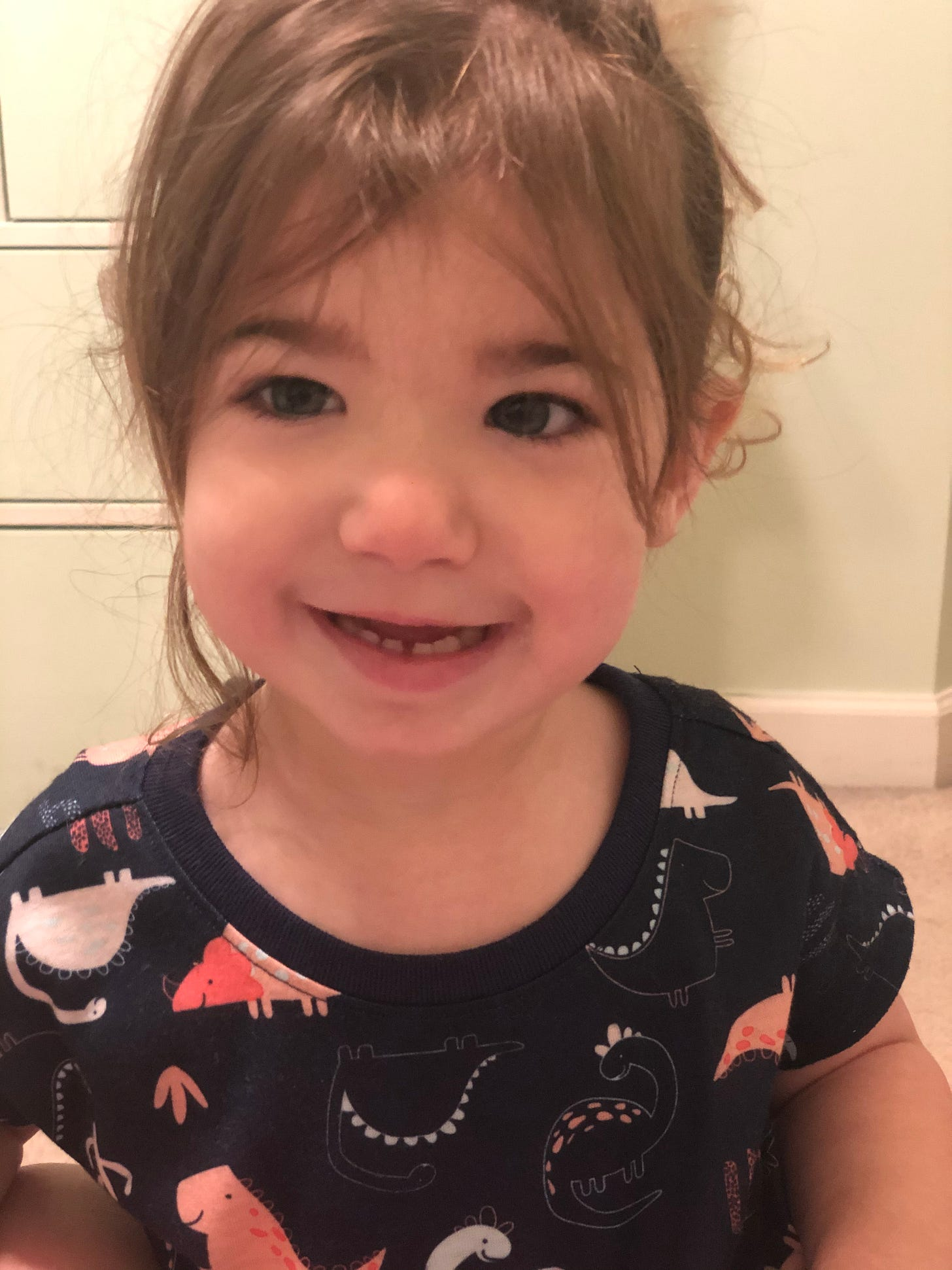Photo of Lila smiling and showing her fused tooth.