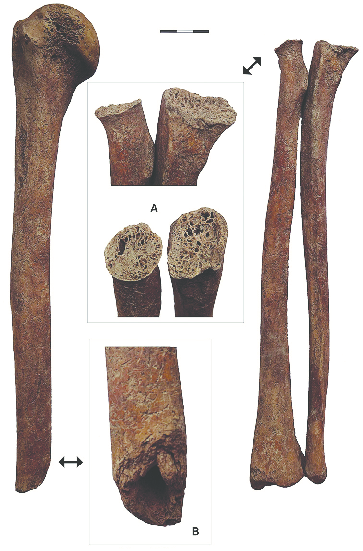 Signs of fractures in the bones of the right forearm and arm, skeleton No. 5. A – defects of the proximal epiphyses of the right radial and ulnar bones, B – defect of the distal epiphysis of the humeral bone.