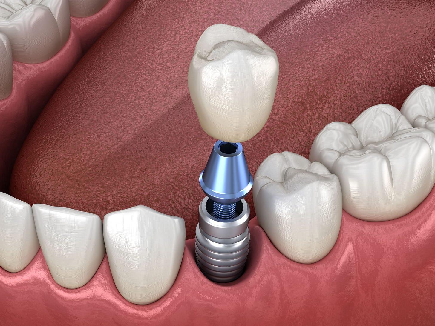 Dental Implant Surgery Recovery: Lake Jackson, TX