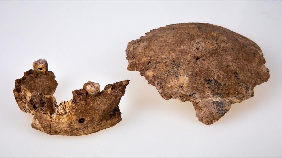 Skull fragment and jawbone