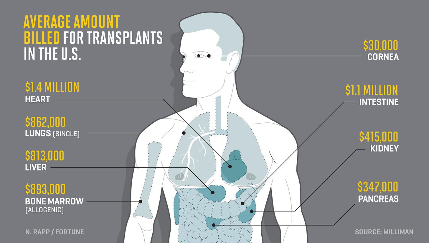 Image result for organ transplant costs