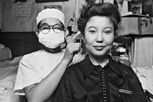 Dr. Fu Nongyu pointing to the eyes of a patient who had plastic surgery to get double eyelids, a feature more common in Western cultures. Beijing, 1980.
