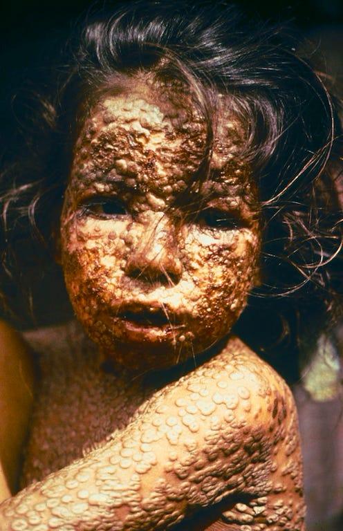A Bangladeshi child with smallpox