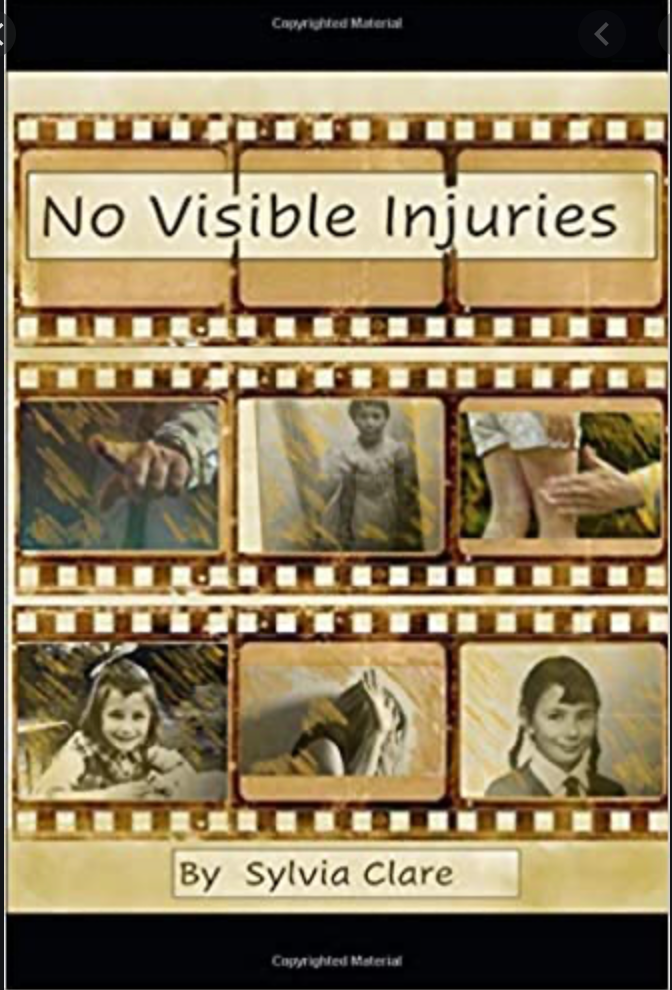 No visible injuries by Sylvia Clare