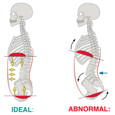 IAP vs Brace: Our Patients Need to Know the Difference — Gestalt Education