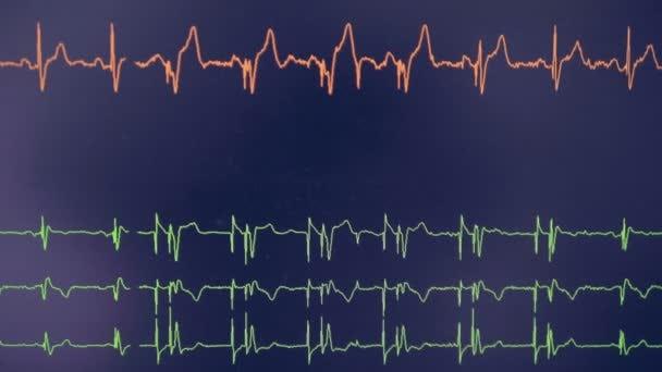 Real cardiogram. Cardiograph oscilloscope show heart beat rate on a screen.  — Stock Video © svmedia21.gmail.com #188144398