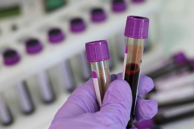 blood samples_720