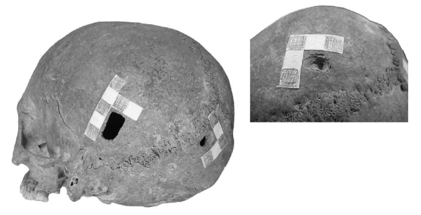 Skull with violent traumas from Tell Yunatsite.